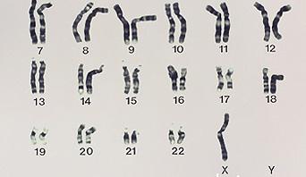 M352034_turner-syndrome_342x198.jpg